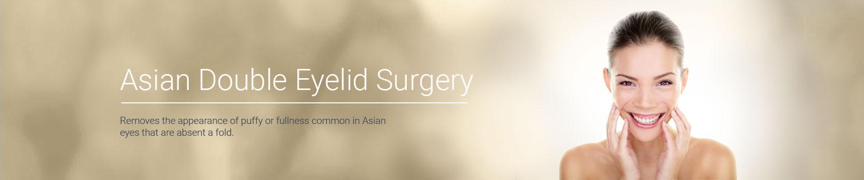 Asianeyelidsurgery