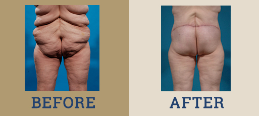 Drha Beforeafter Bodycontour1 1