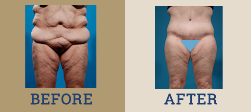 Drha Beforeafter Bodycontour1 2