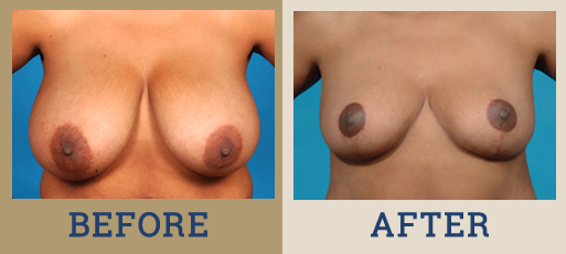 Drha Beforeafter Breastreduc 1 1