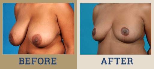 Drha Beforeafter Breastreduc 1 2