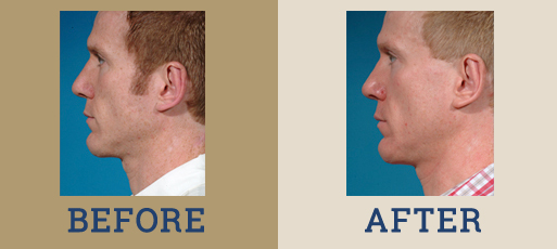 drha_beforeafter_chin_implant_1-2