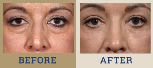 drha_beforeafter_eyelid_surgery_1