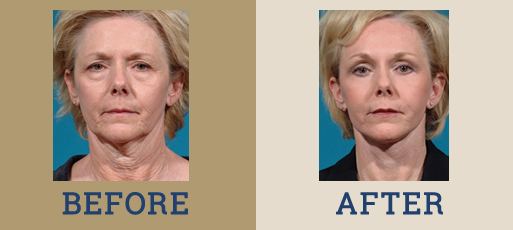 drha_beforeafter_facelift1-1