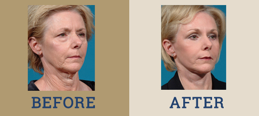 drha_beforeafter_facelift1-2