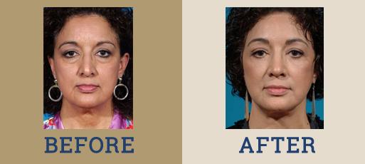 Drha Beforeafter Facelift2