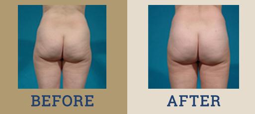 Liposuction & Body Contouring