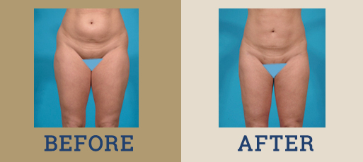 drha_beforeafter_liposuction_2-1