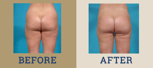 drha_beforeafter_liposuction_2-2