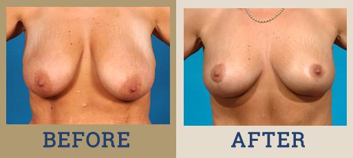 Breast Lift (Mastopexy)