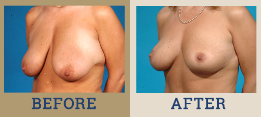 Drha Beforeafter Mastopexy 1 2