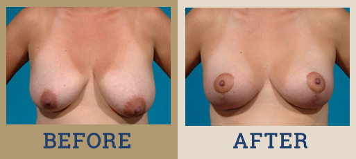 Drha Beforeafter Mastopexy 2 1