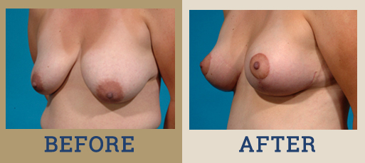 Drha Beforeafter Mastopexy 2 2