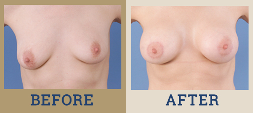 Drha Beforeafter Mastopexy 3 1