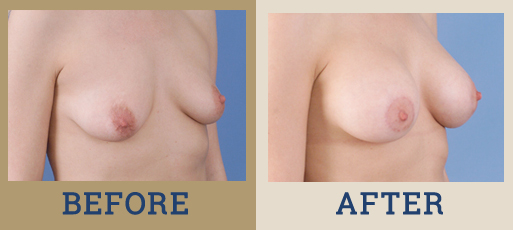 Drha Beforeafter Mastopexy 3 2