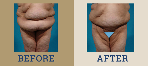 drha_beforeafter_panniculectomy1-1