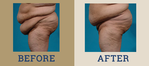Drha Beforeafter Panniculectomy1 2